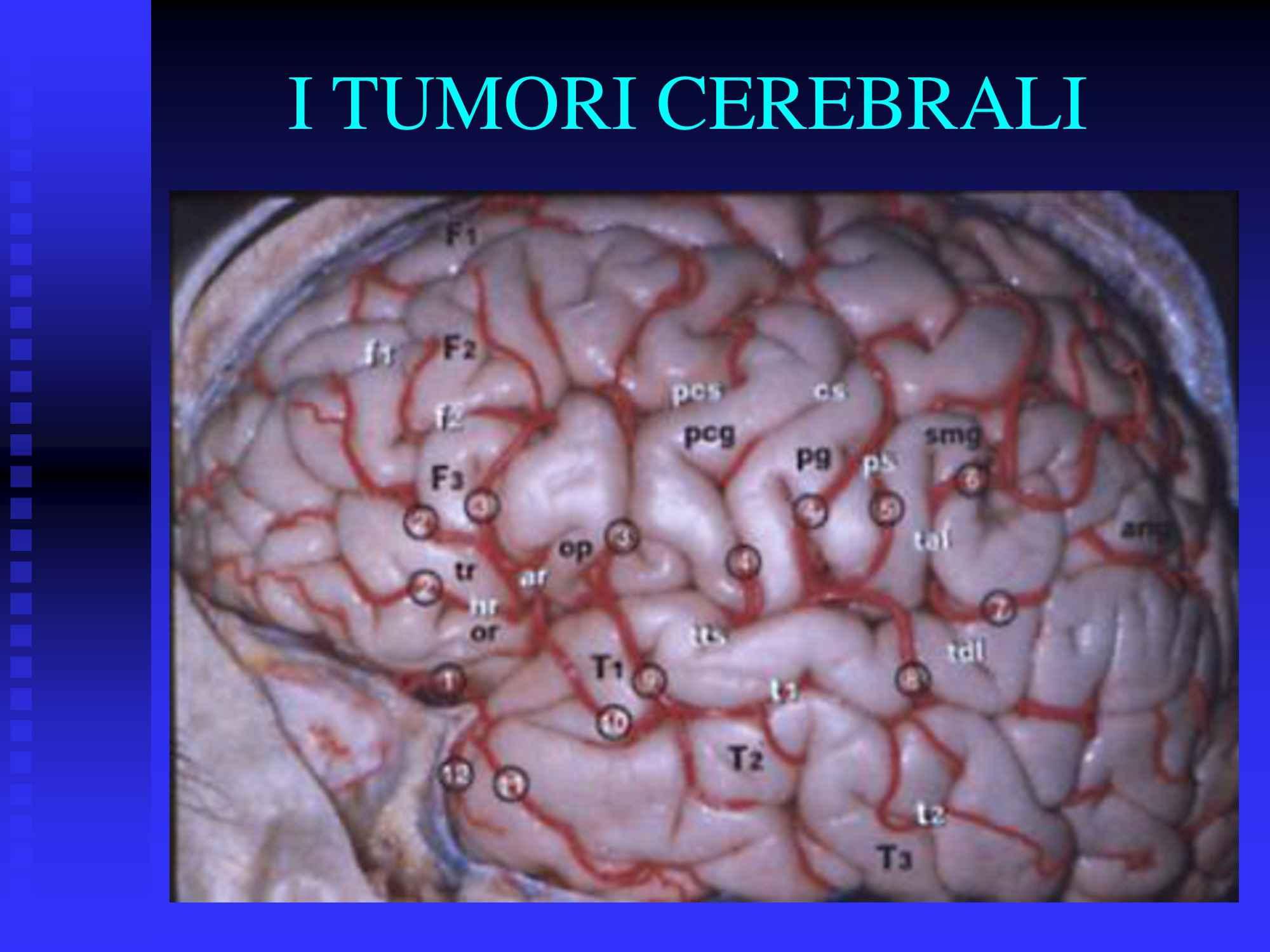 Tumori cerebrali