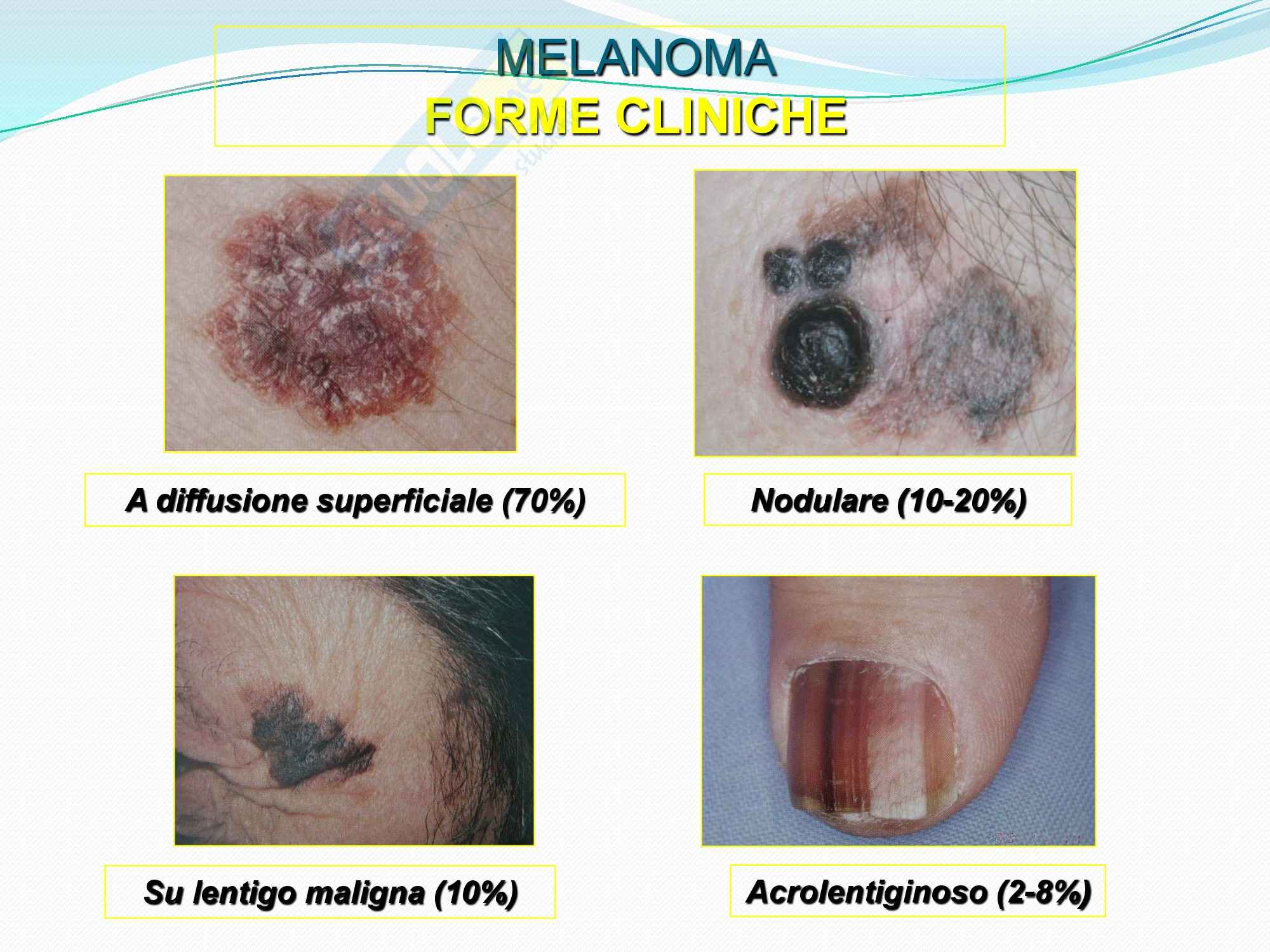 Chirurgia plastica - le forme cliniche del melanoma