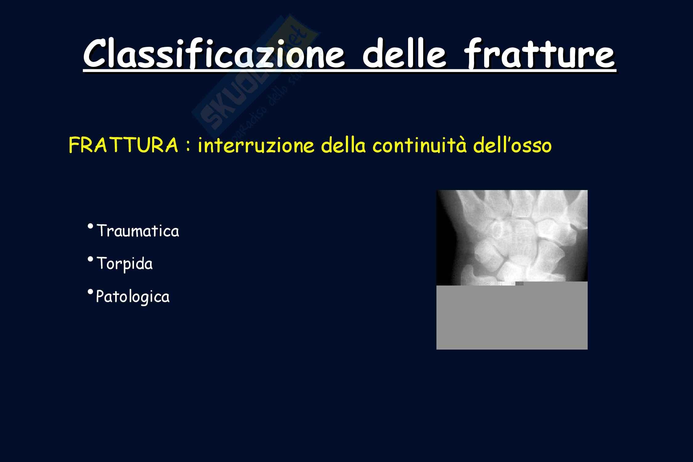 Ortopedia - Classificazione delle fratture