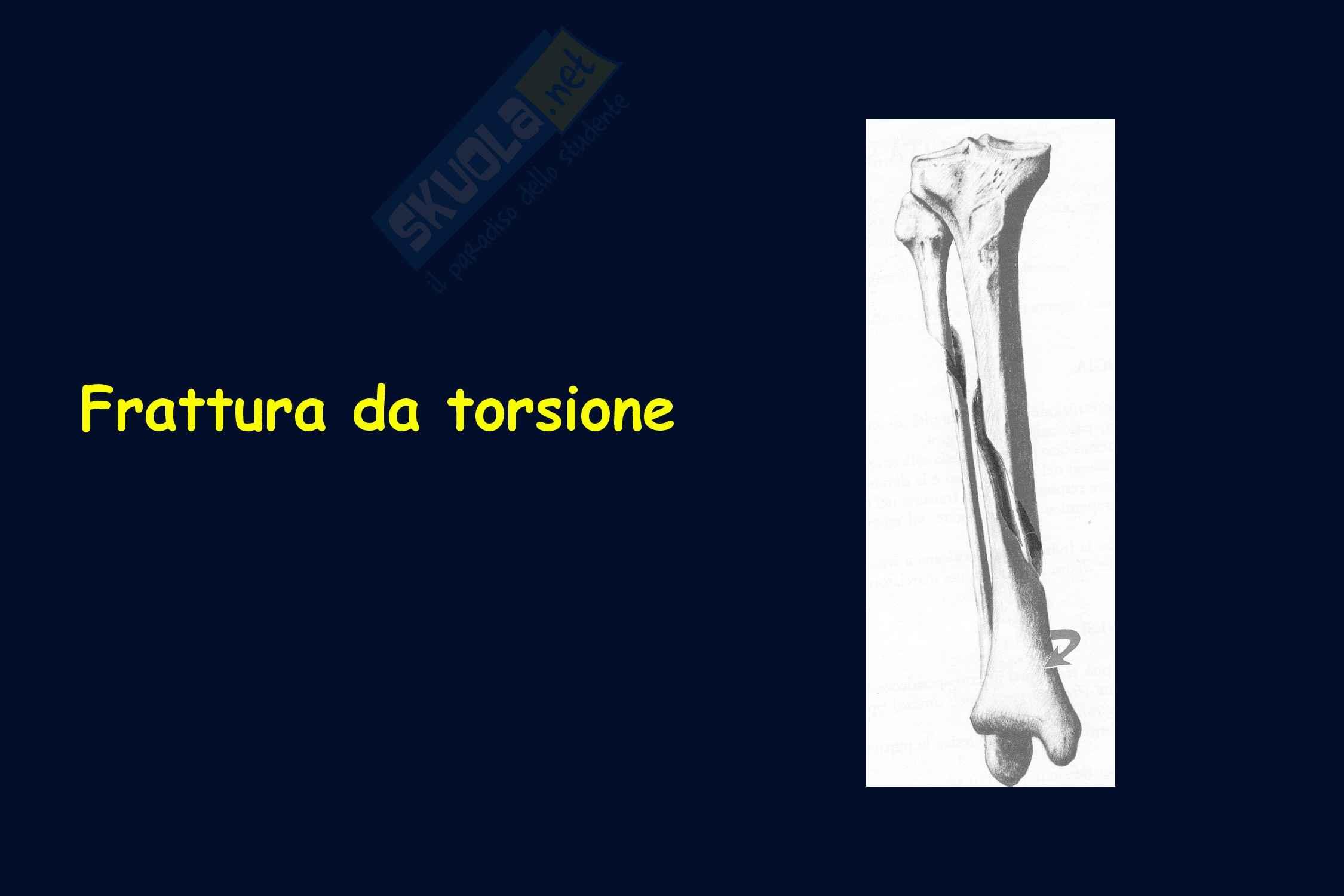 Ortopedia - Classificazione delle fratture Pag. 6