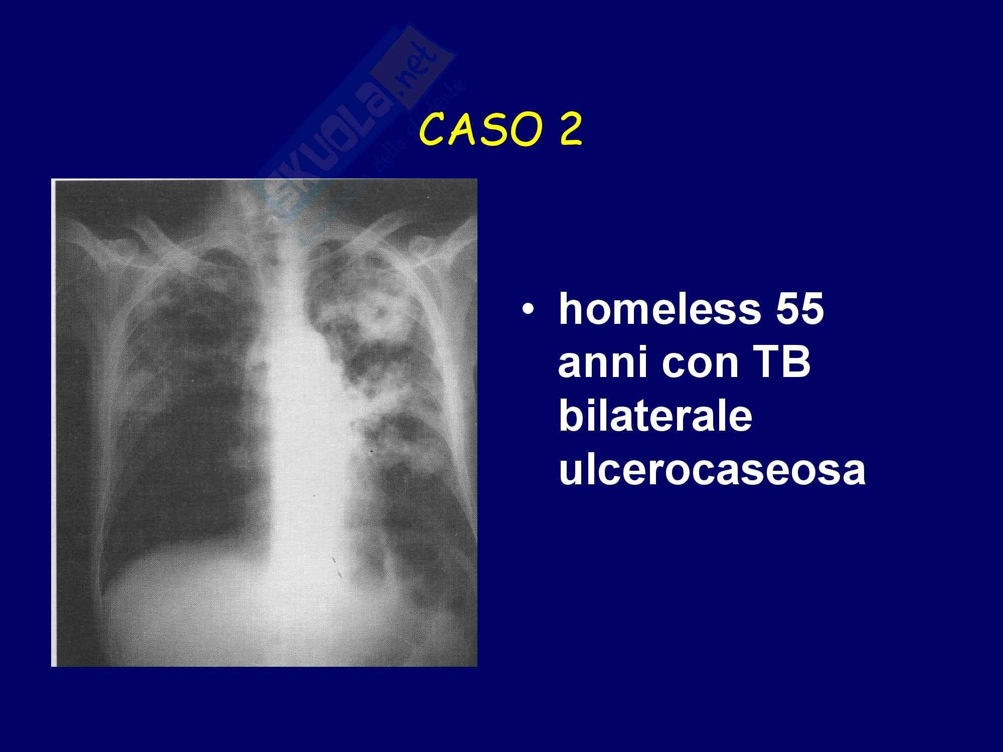 TBC - Tubercolosi polmonare Pag. 51