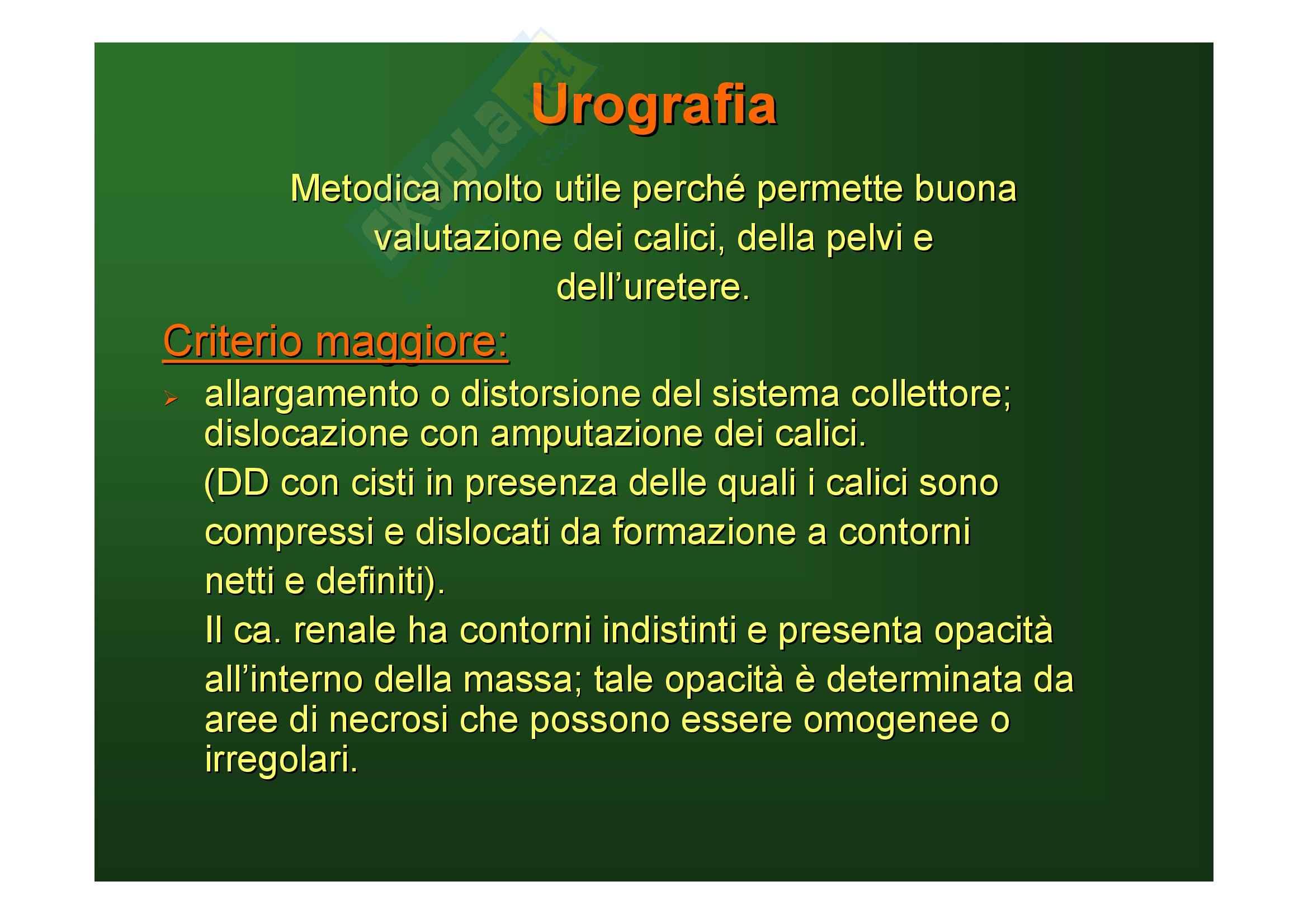 Malattie del rene e delle vie urinarie - tumori del rene Pag. 21