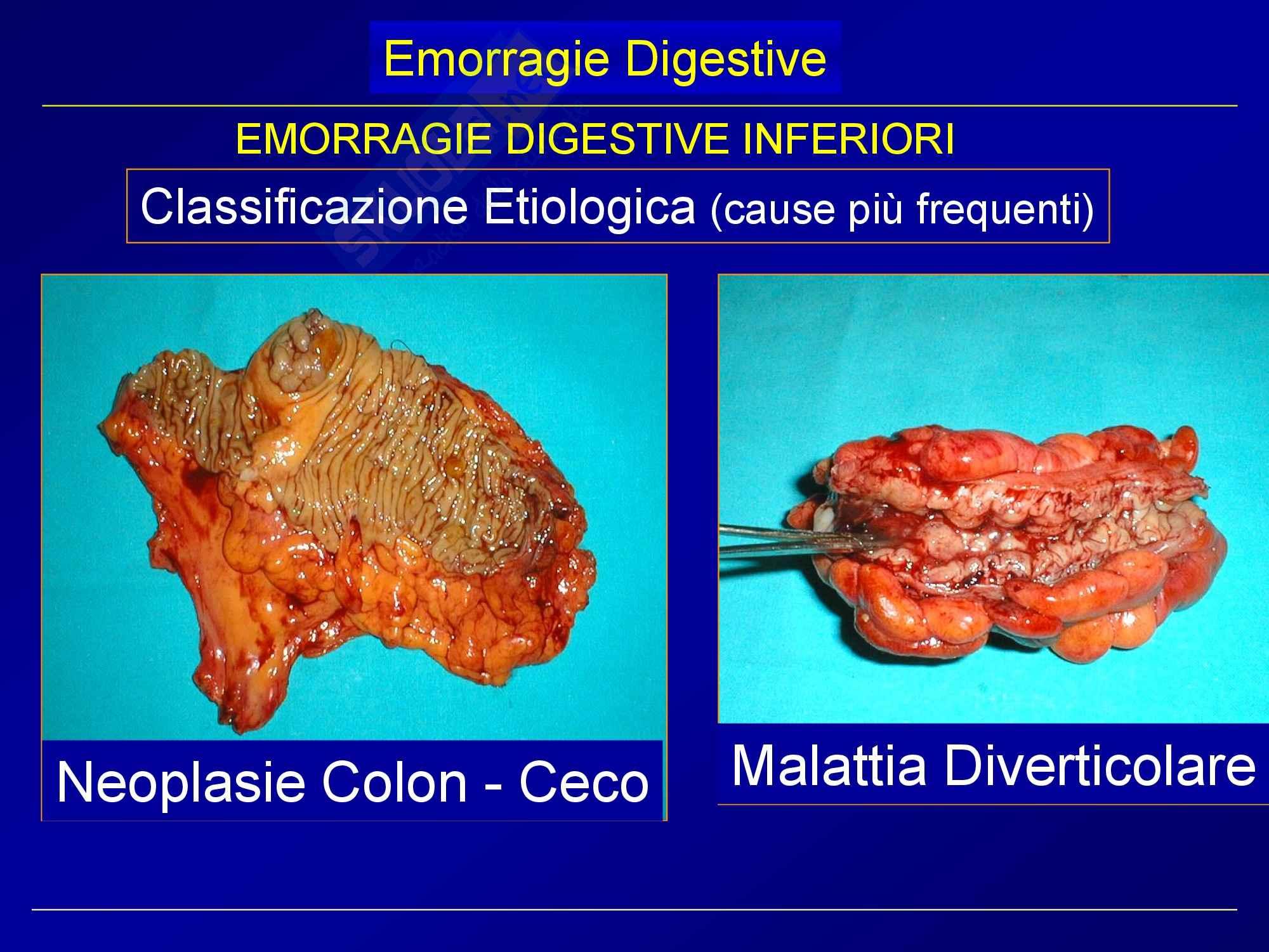 Chirurgia generale - emorragie digestive Pag. 21