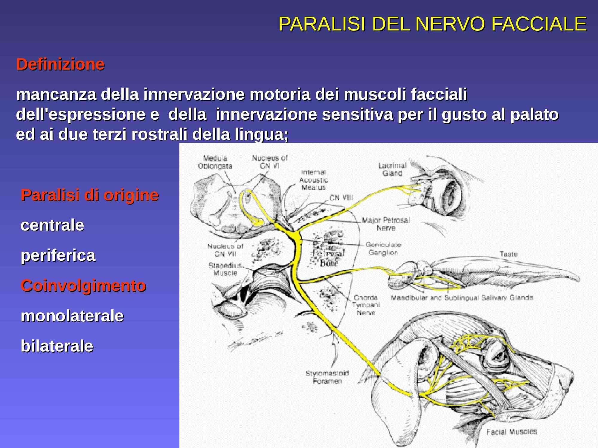 Paralisi del nervo facciale