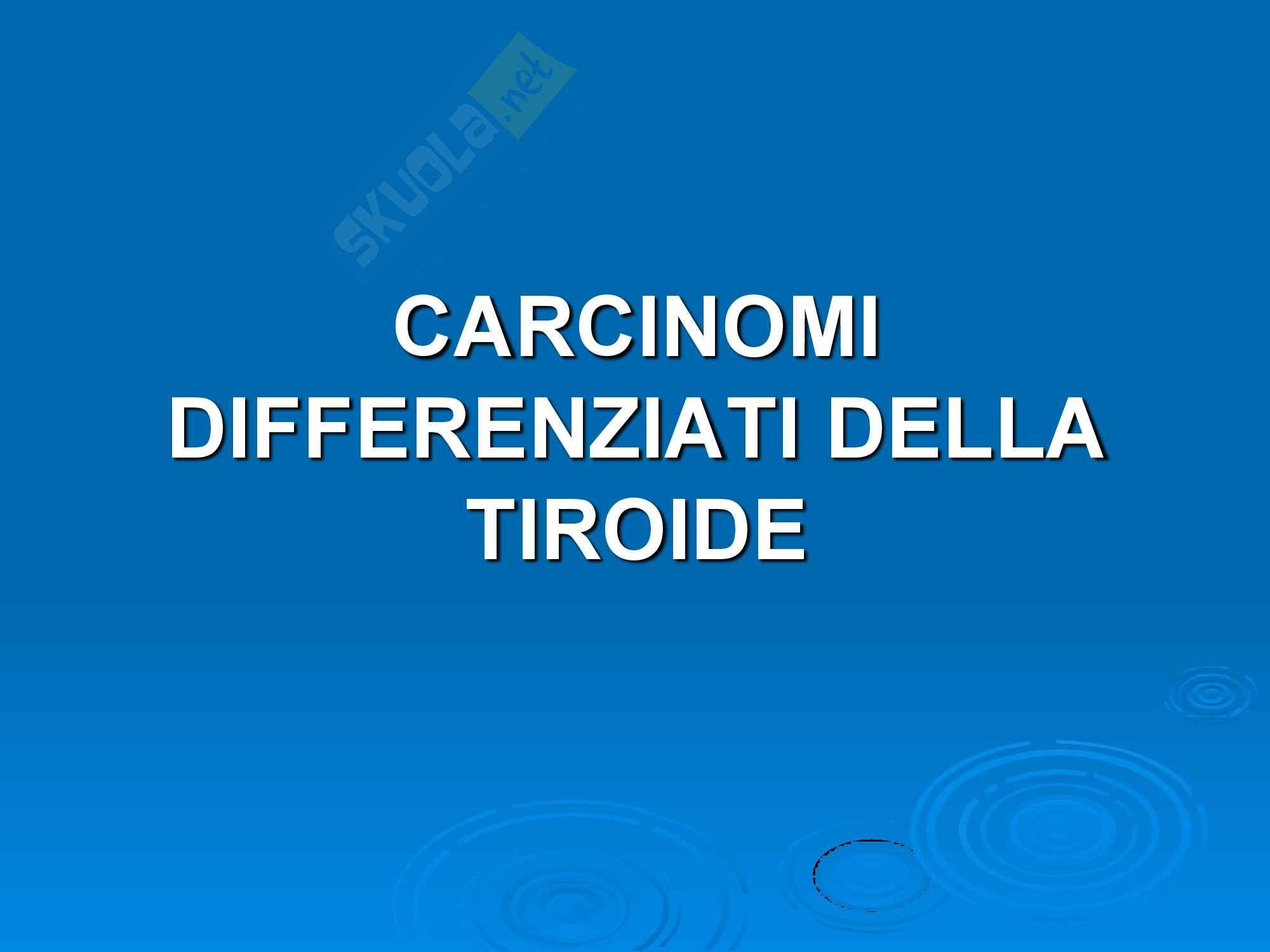 Carcinomi della Tiroide - Semeiotica Chirurgica.