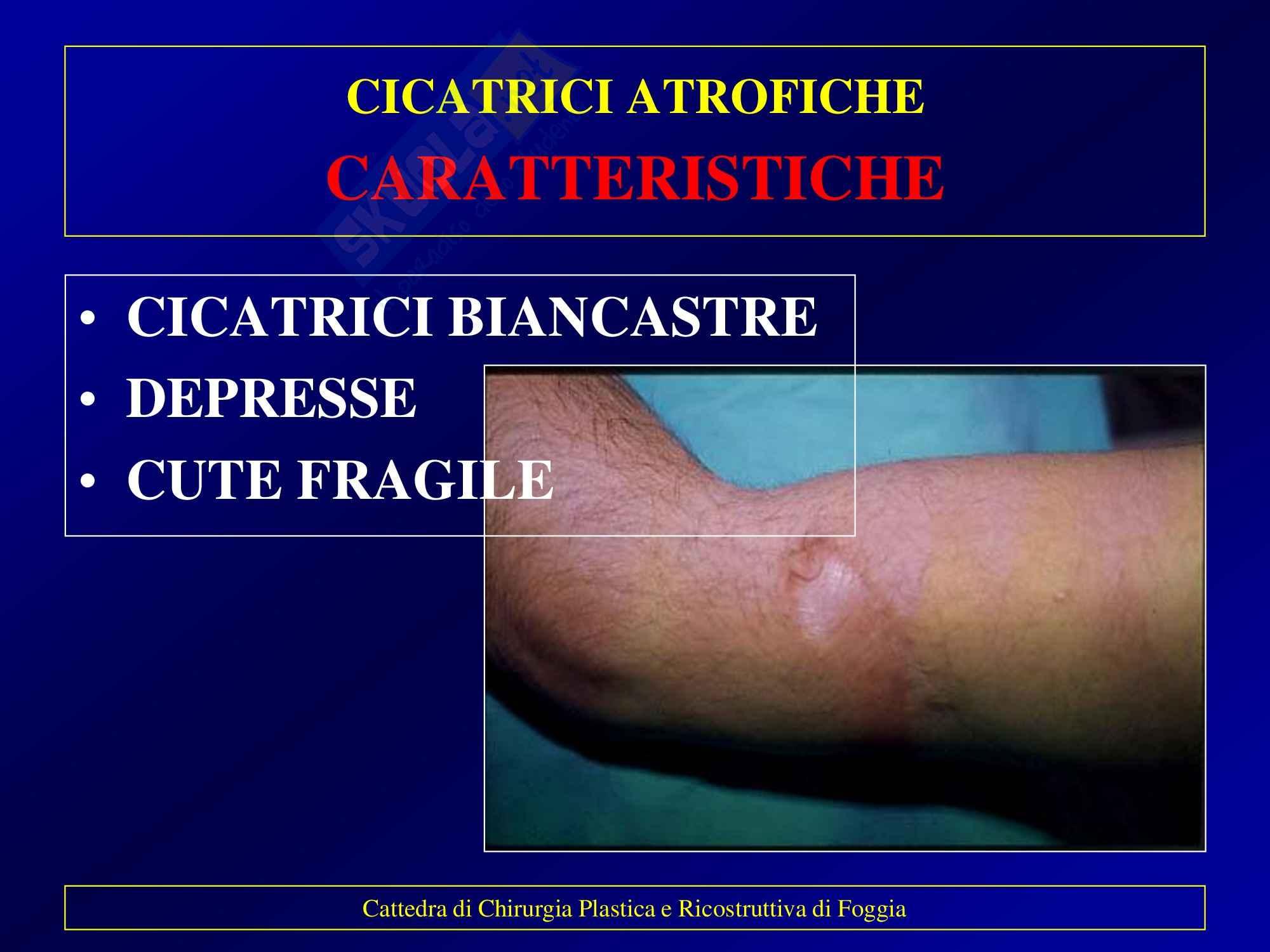 Chirurgia plastica - Cicatrici patologiche