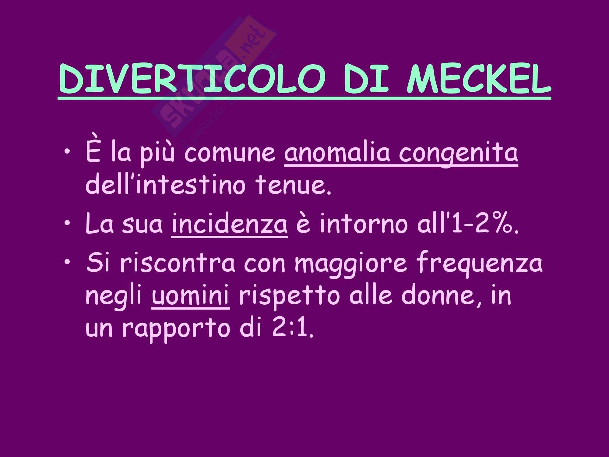 Diverticolo di Meckel