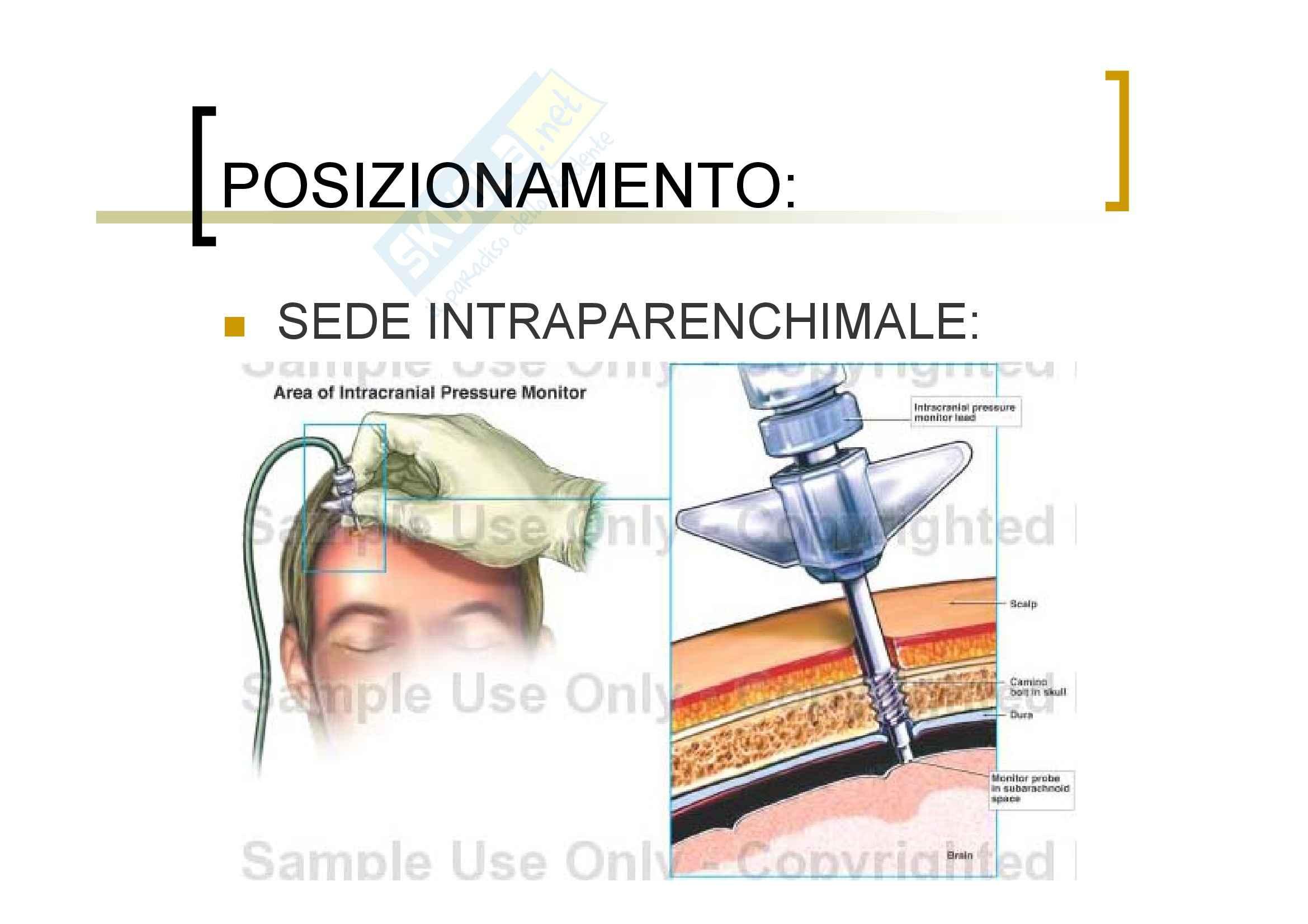 Neurochirurgia - la pressione intracranica Pag. 16