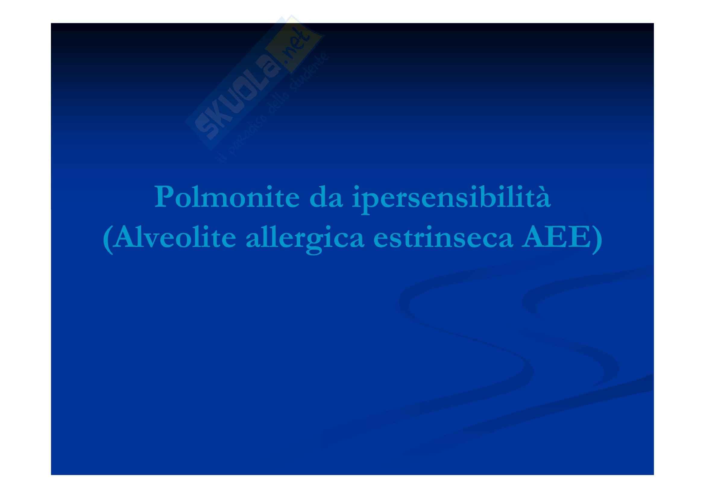 Polmonite da ipersensibilità