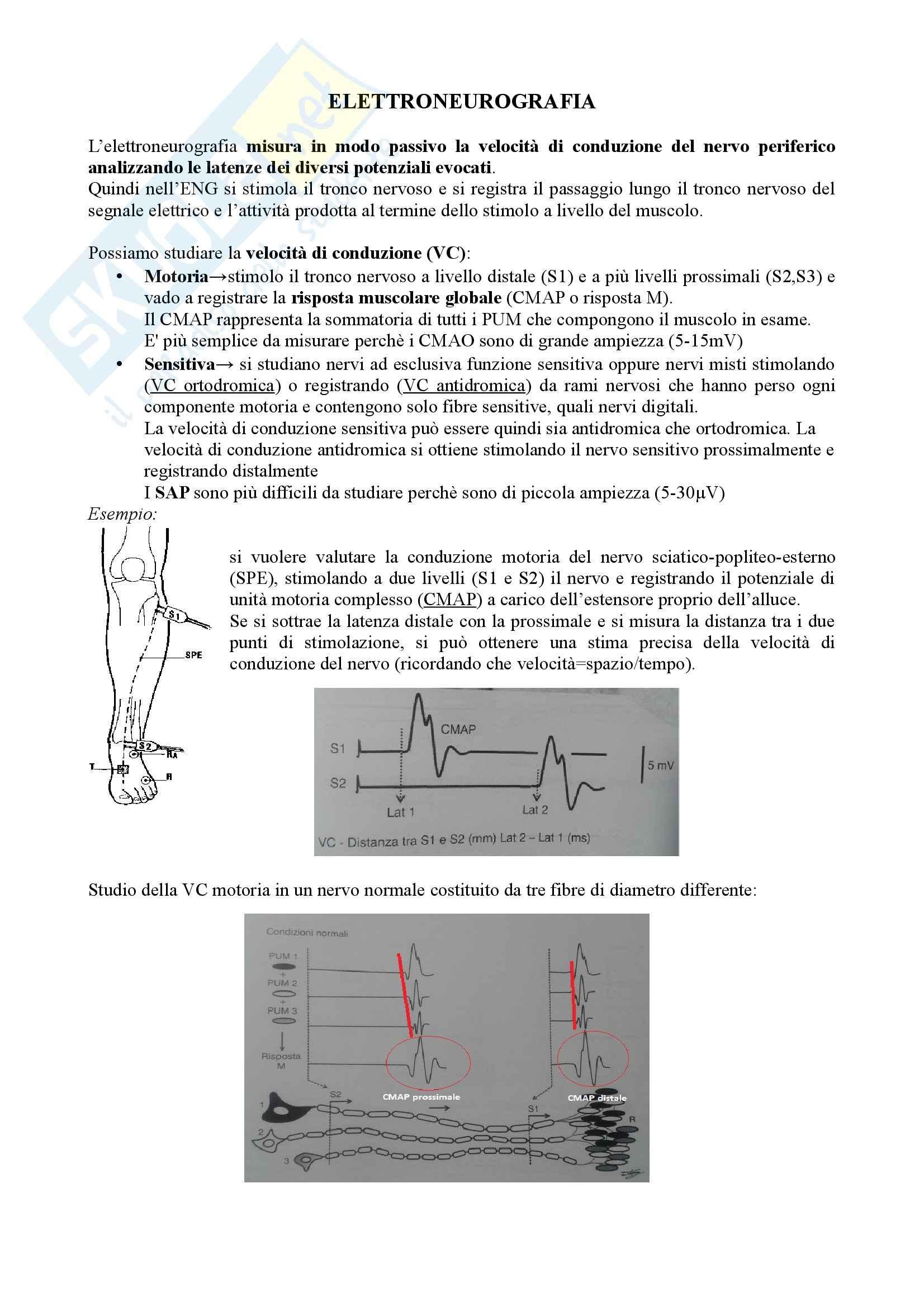 Riassunto esame Neurologia, Prof Pinessi, libro consigliato Neurology Book, Pinessi Pag. 6