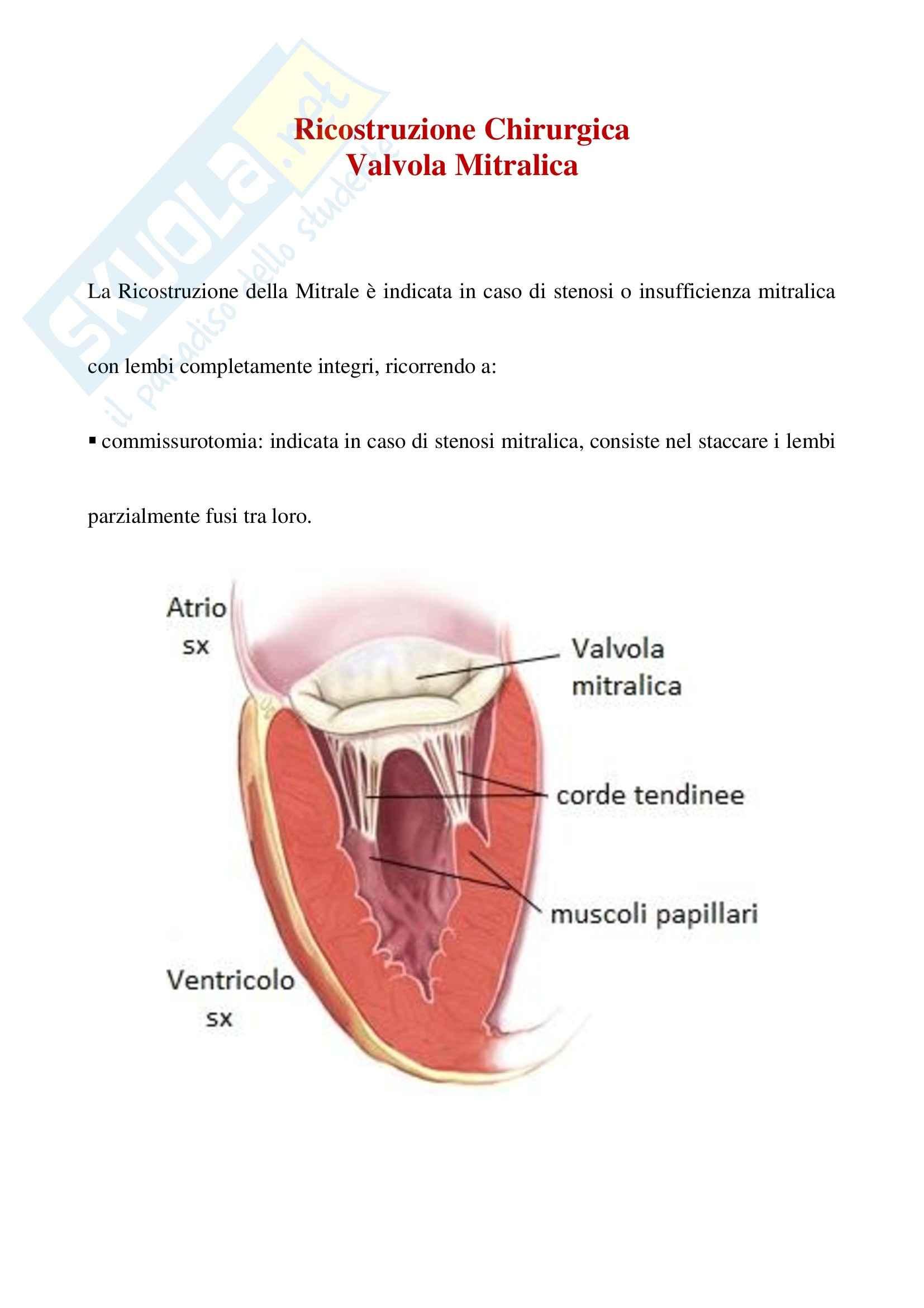 Cardiochirurgia - ricostruzione chirurgica della mitrale