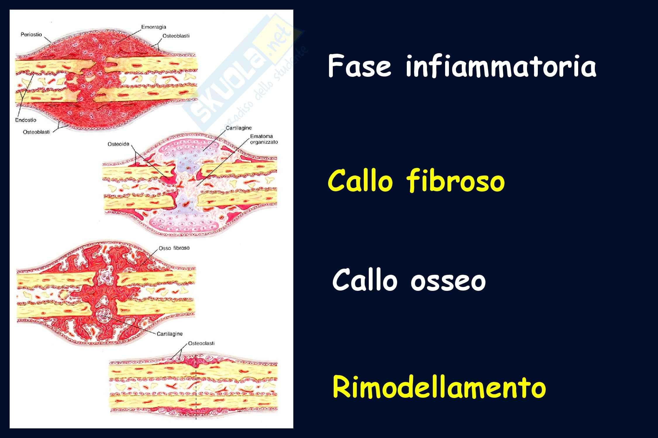 Ortopedia - le fasi di guarigione della lesione ossea