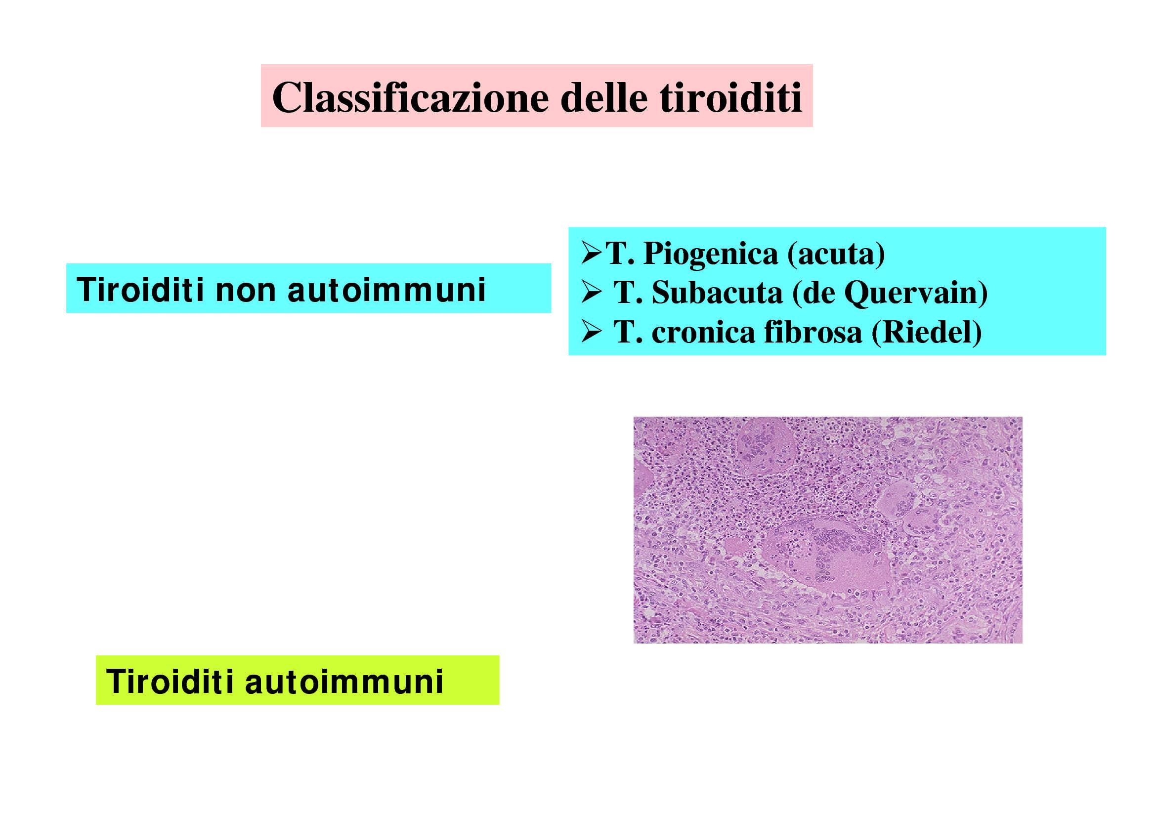 Tiroiditi