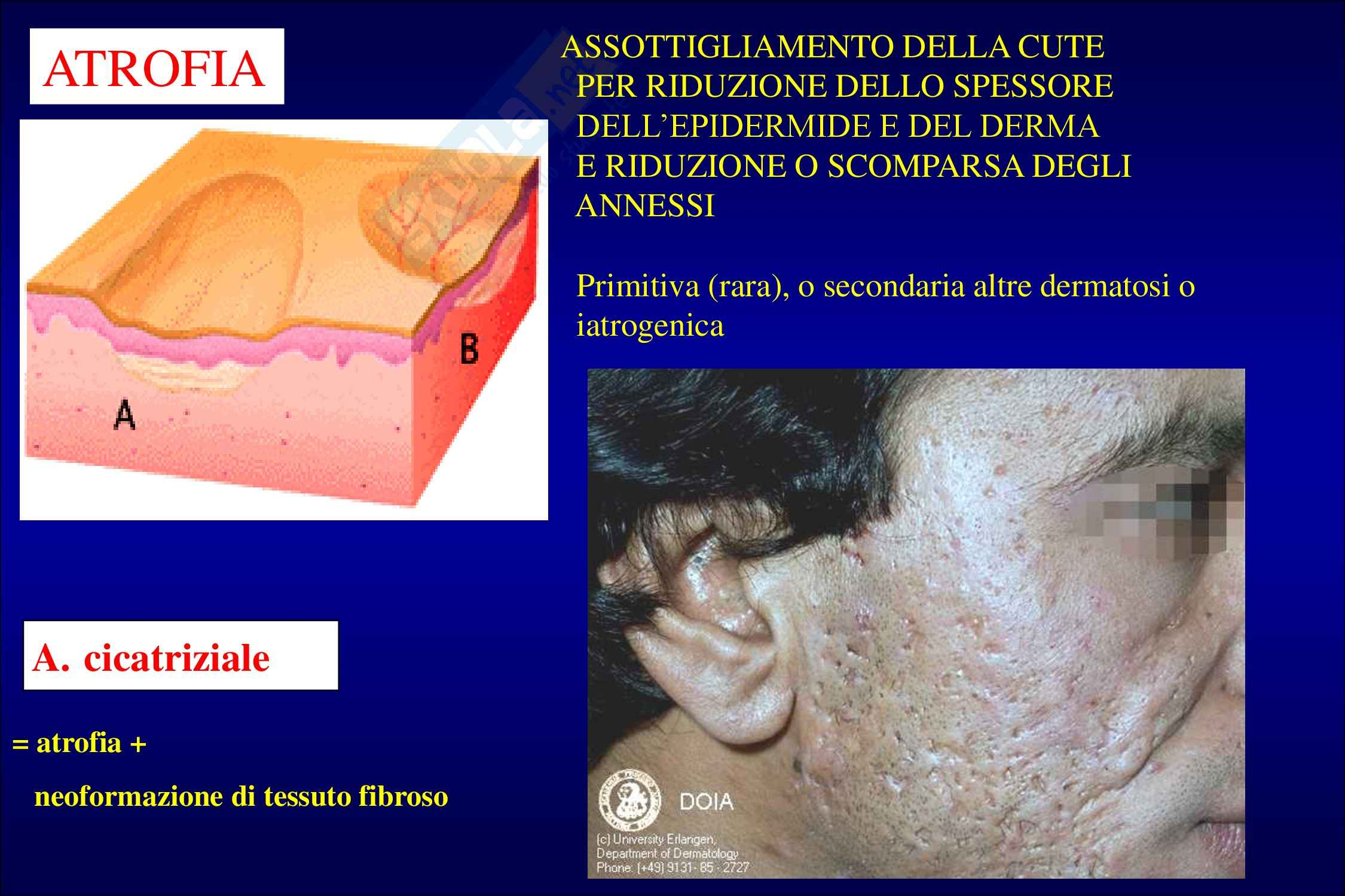 Semeiotica dermatologica Pag. 101