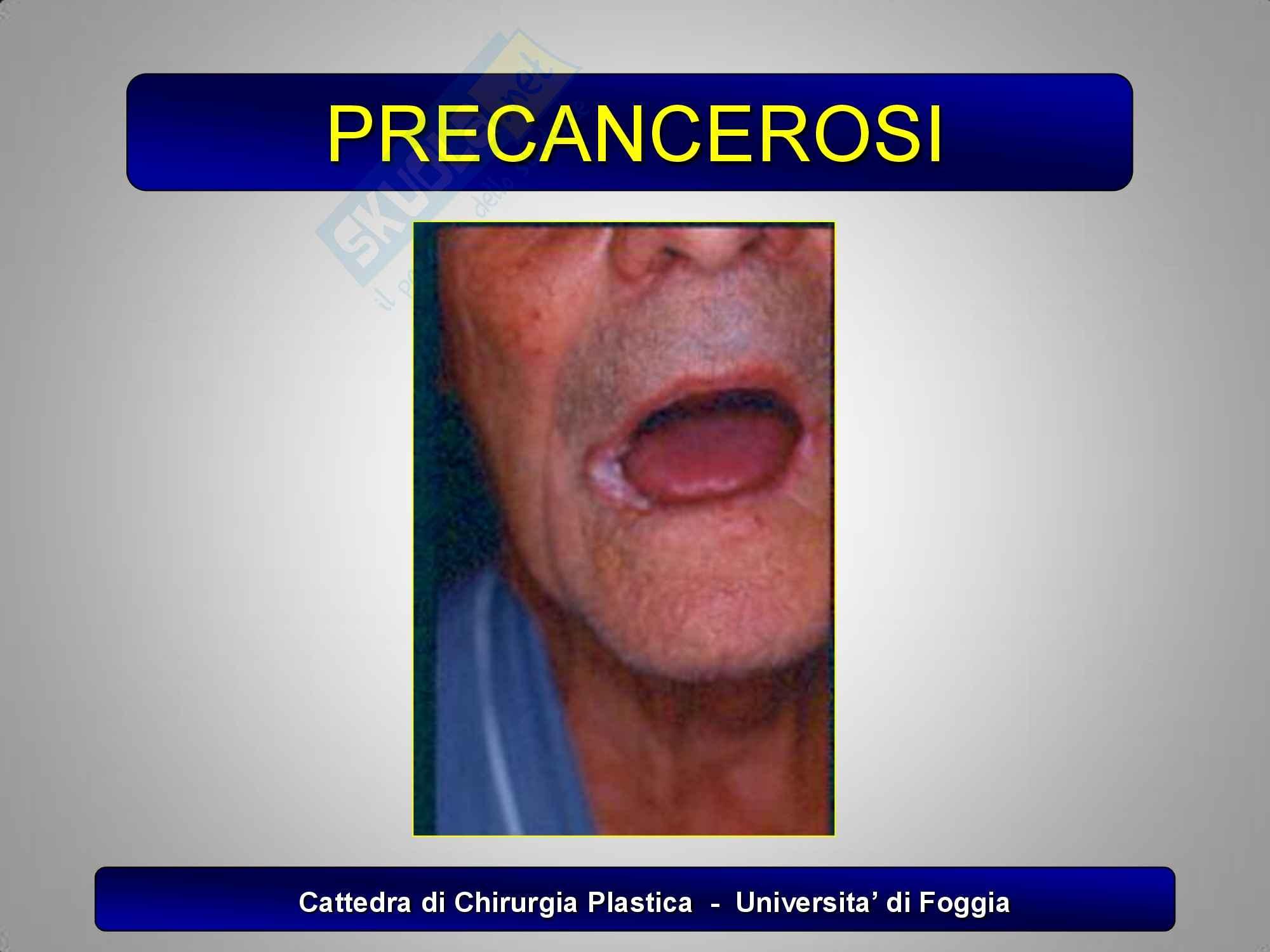 Chirurgia plastica -  i tumori epiteliali maligni Pag. 6