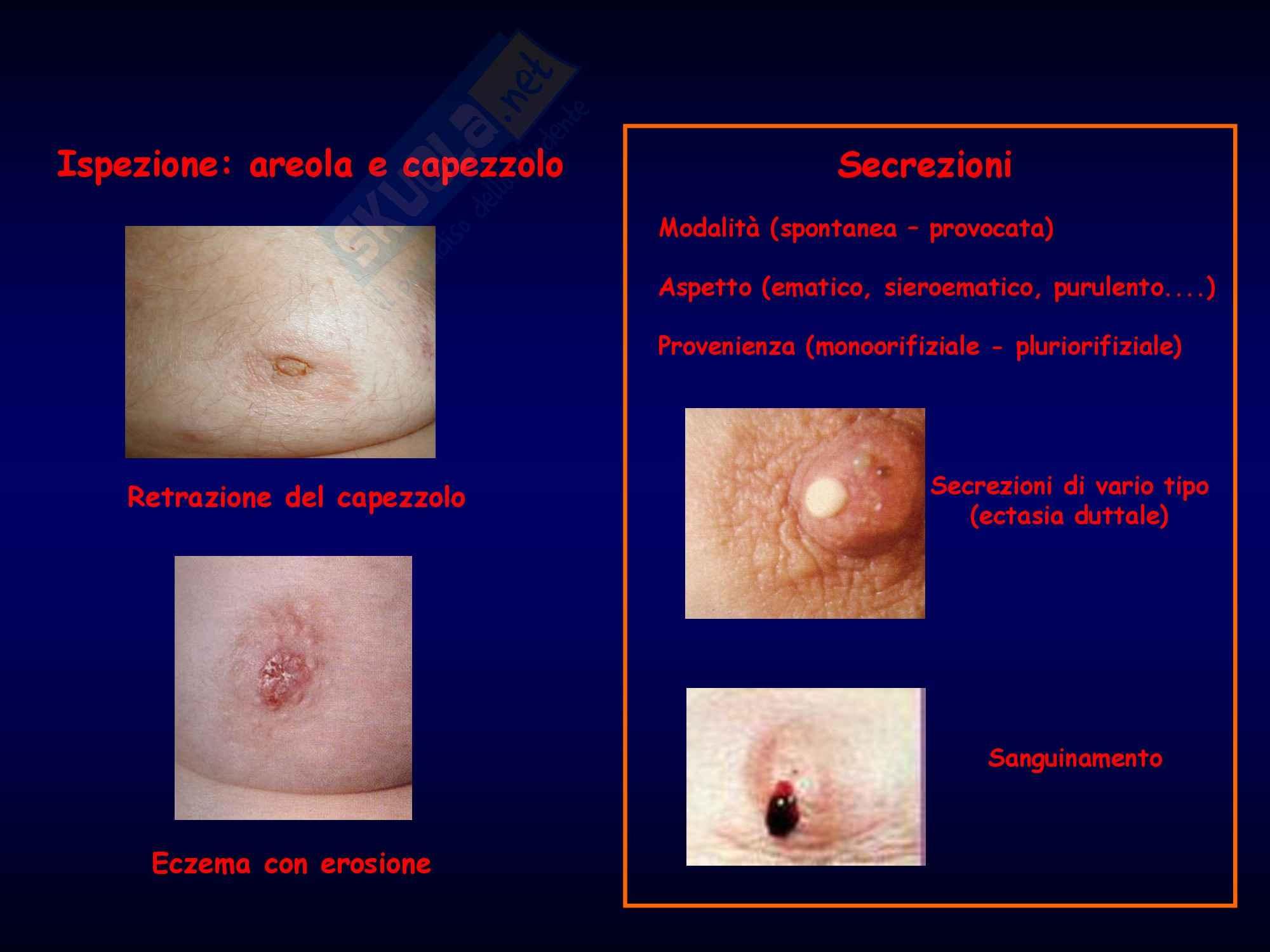 Metodologia Clinica - Semeiotica Chirurgica. Mammella Pag. 6