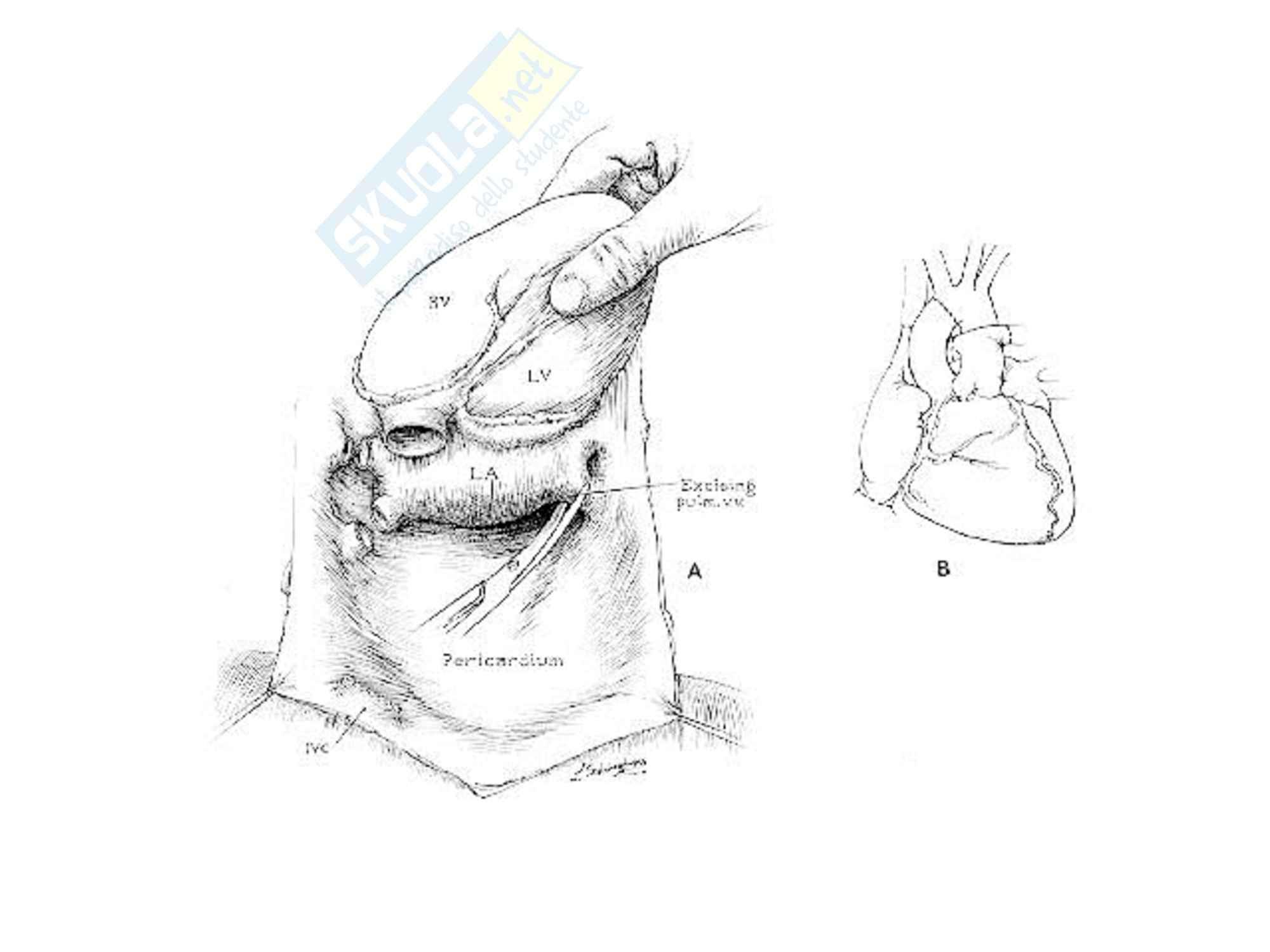 Cardiochirurgia - nuove terapie chirurgiche Pag. 46