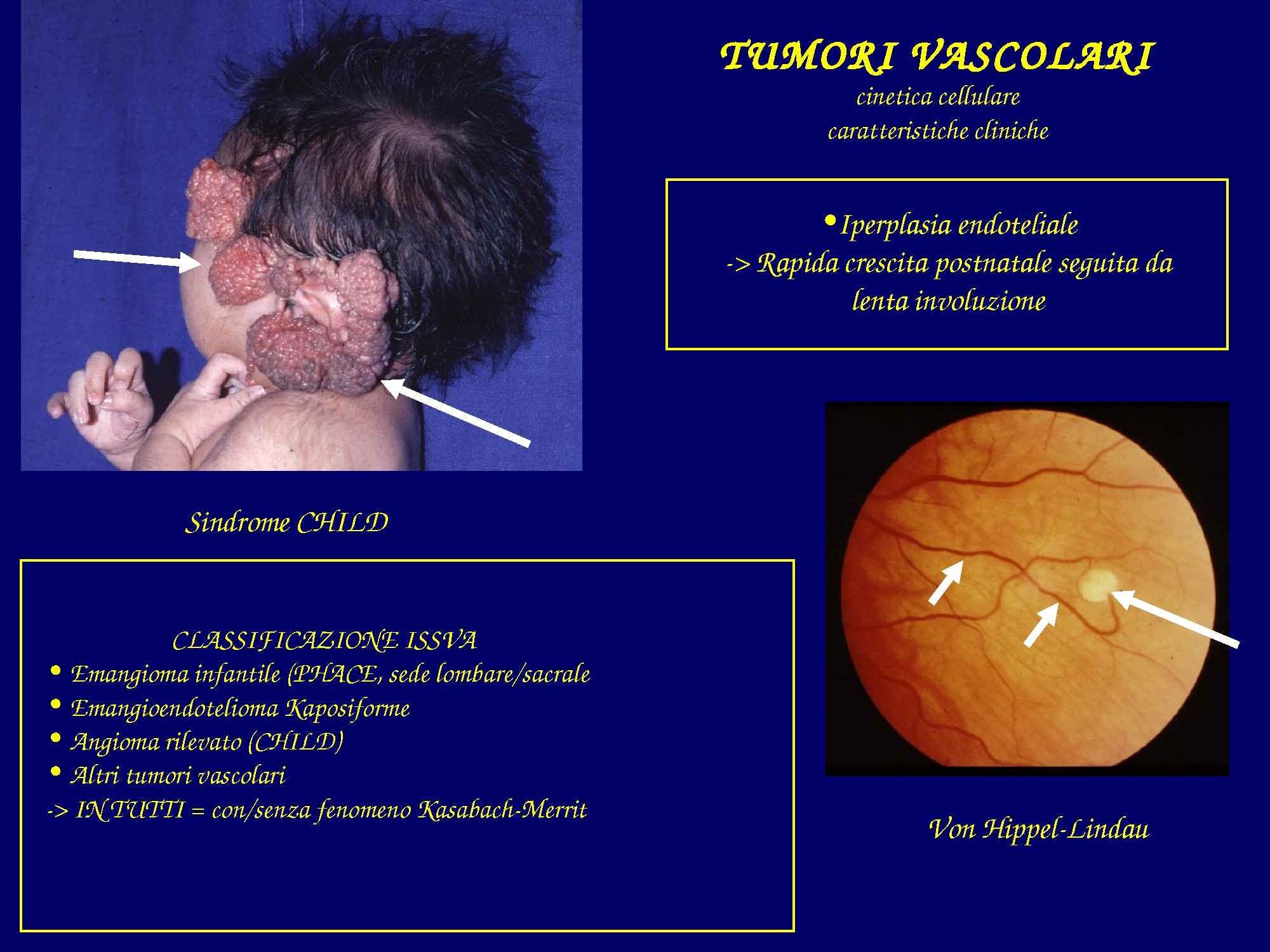 Tumori vascolari