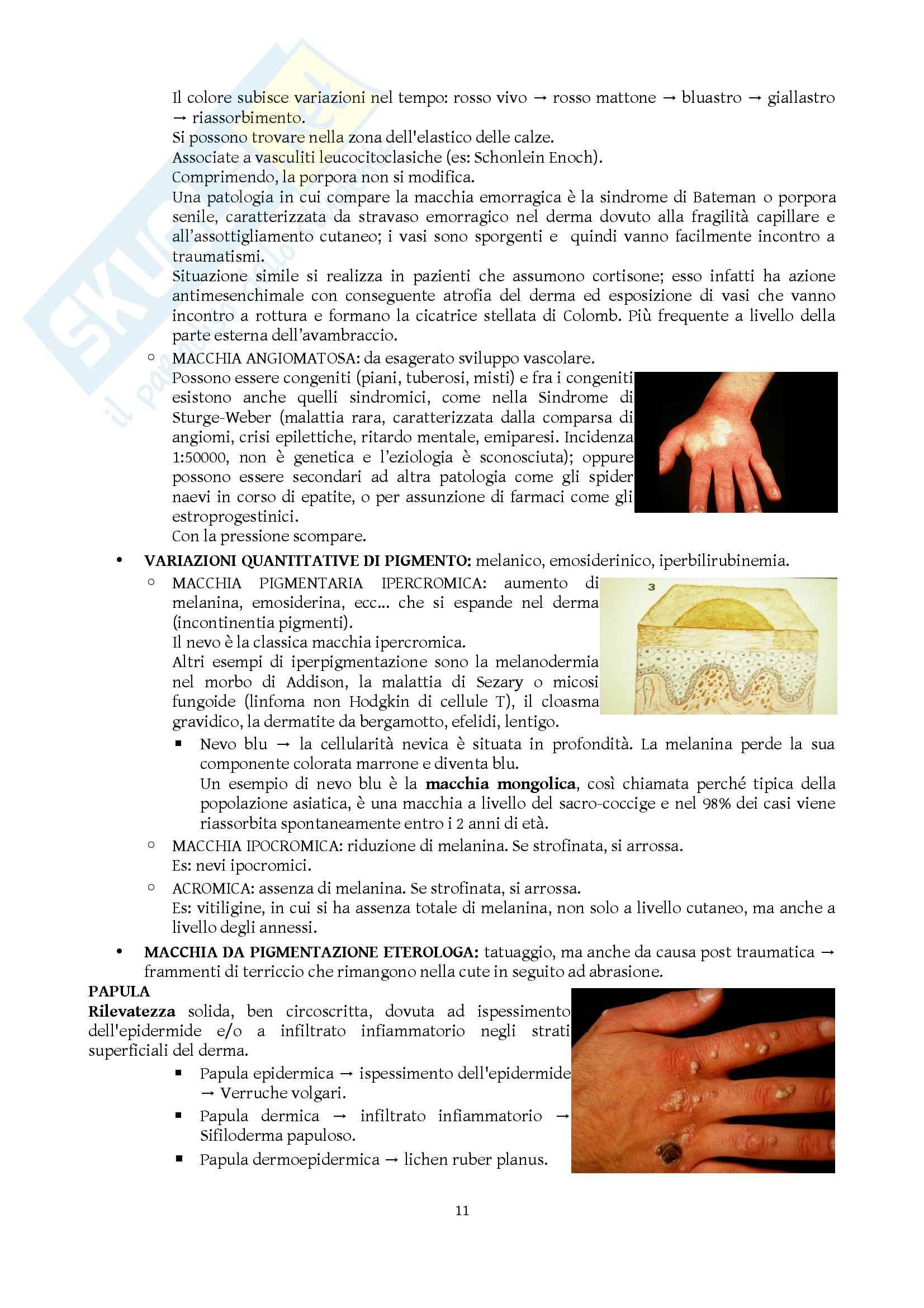 Dermatologia e Venereologia - Appunti Pag. 11