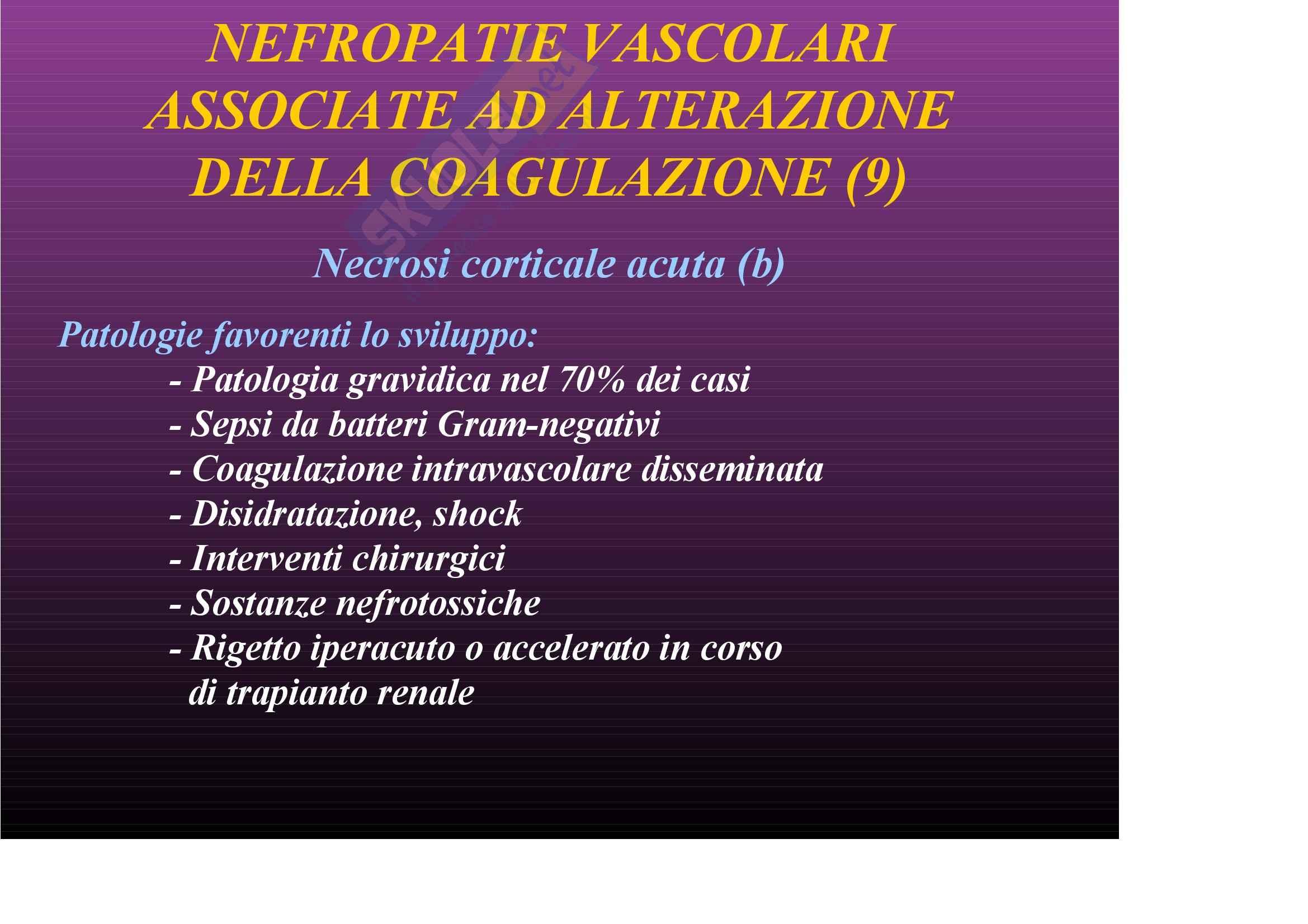 Nefrologia e urologia – Nefropatie vascolari Pag. 51