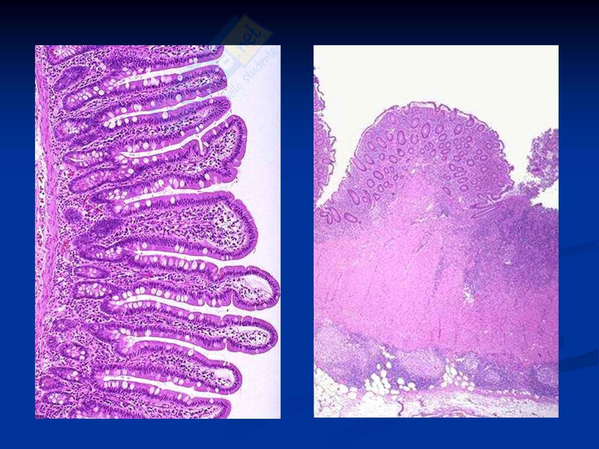Anatomia umana - l'intestino Pag. 16