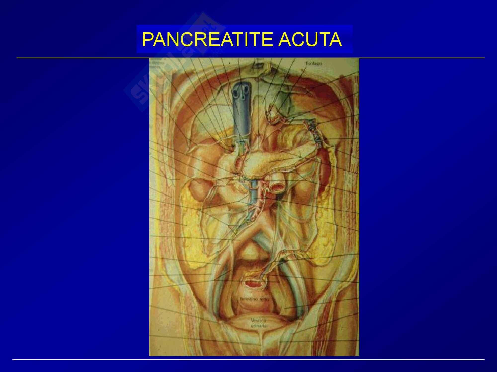 Chirurgia generale - pancreatite acuta