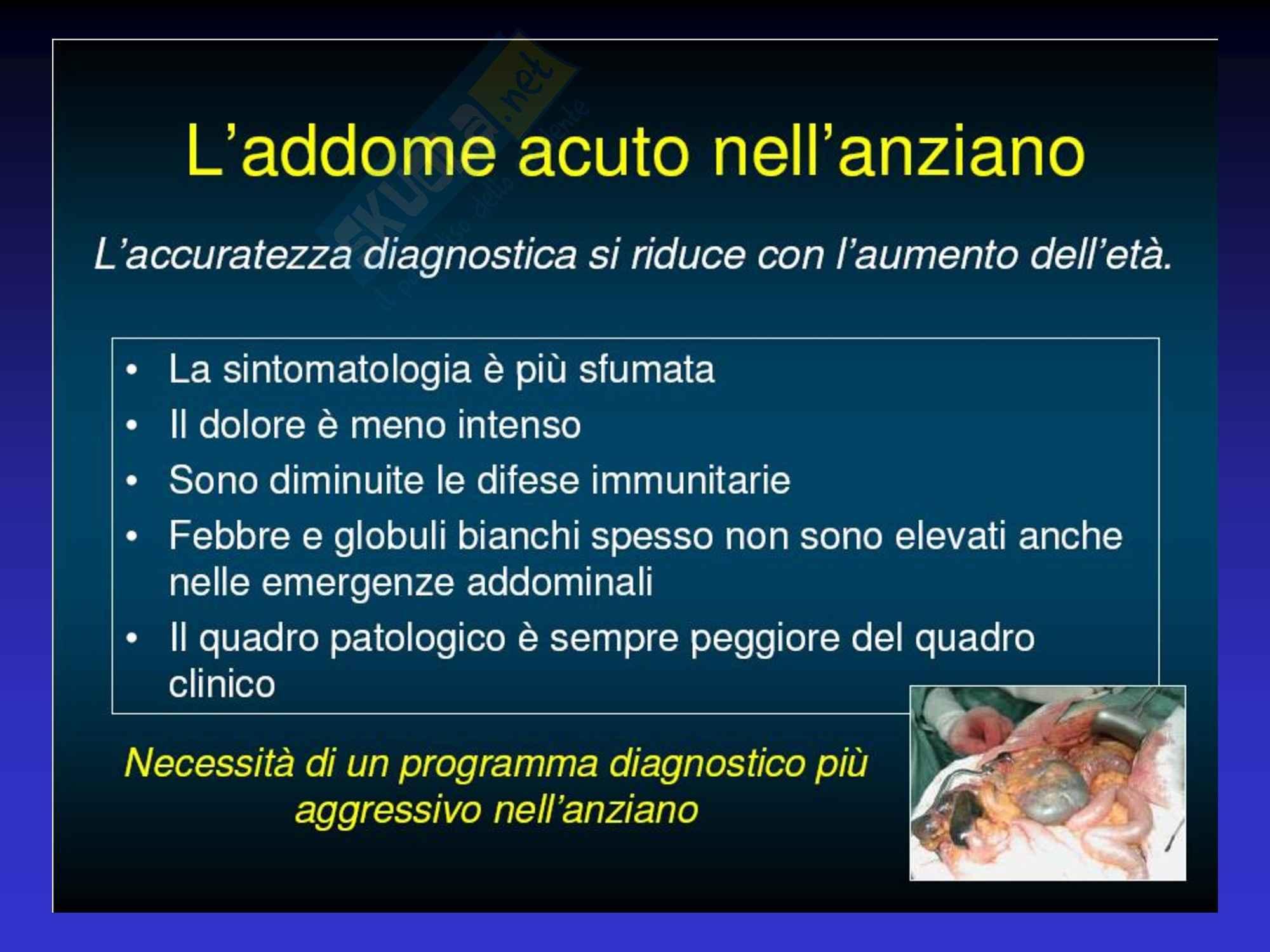 Addome Acuto - Semeiotica Chirurgica Pag. 21