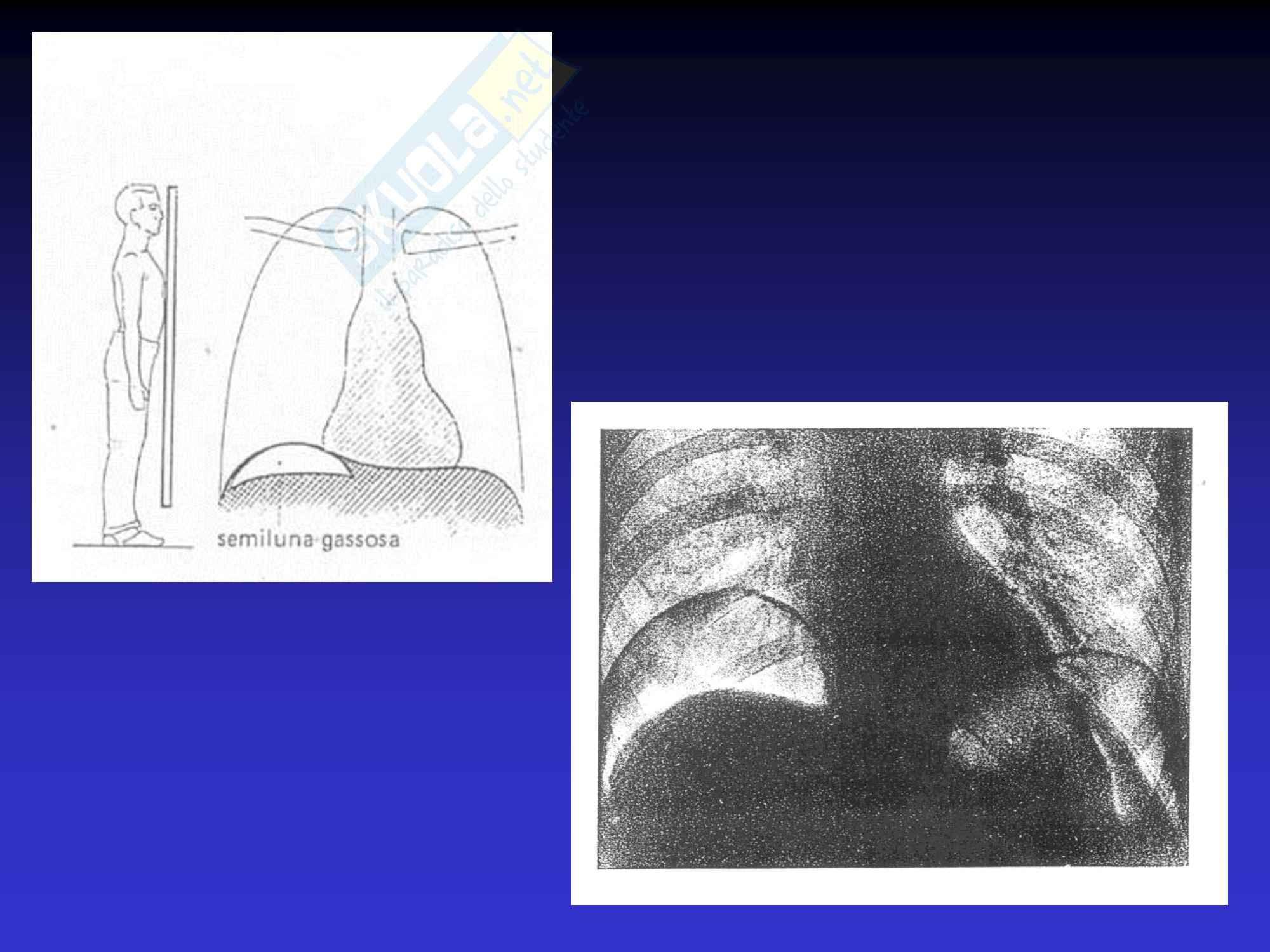 Addome Acuto - Semeiotica Chirurgica Pag. 31
