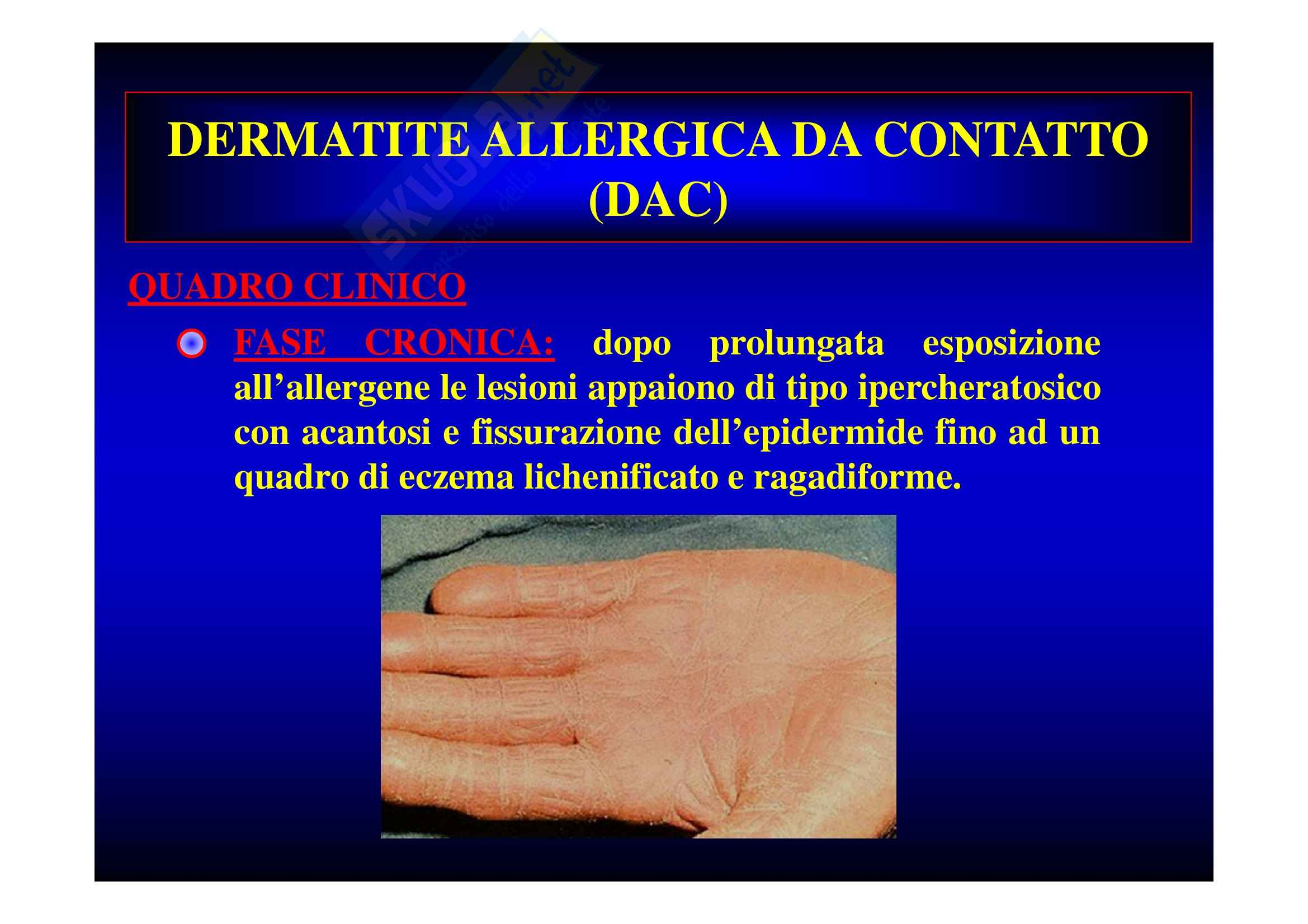 Dermatiti professionali Pag. 31