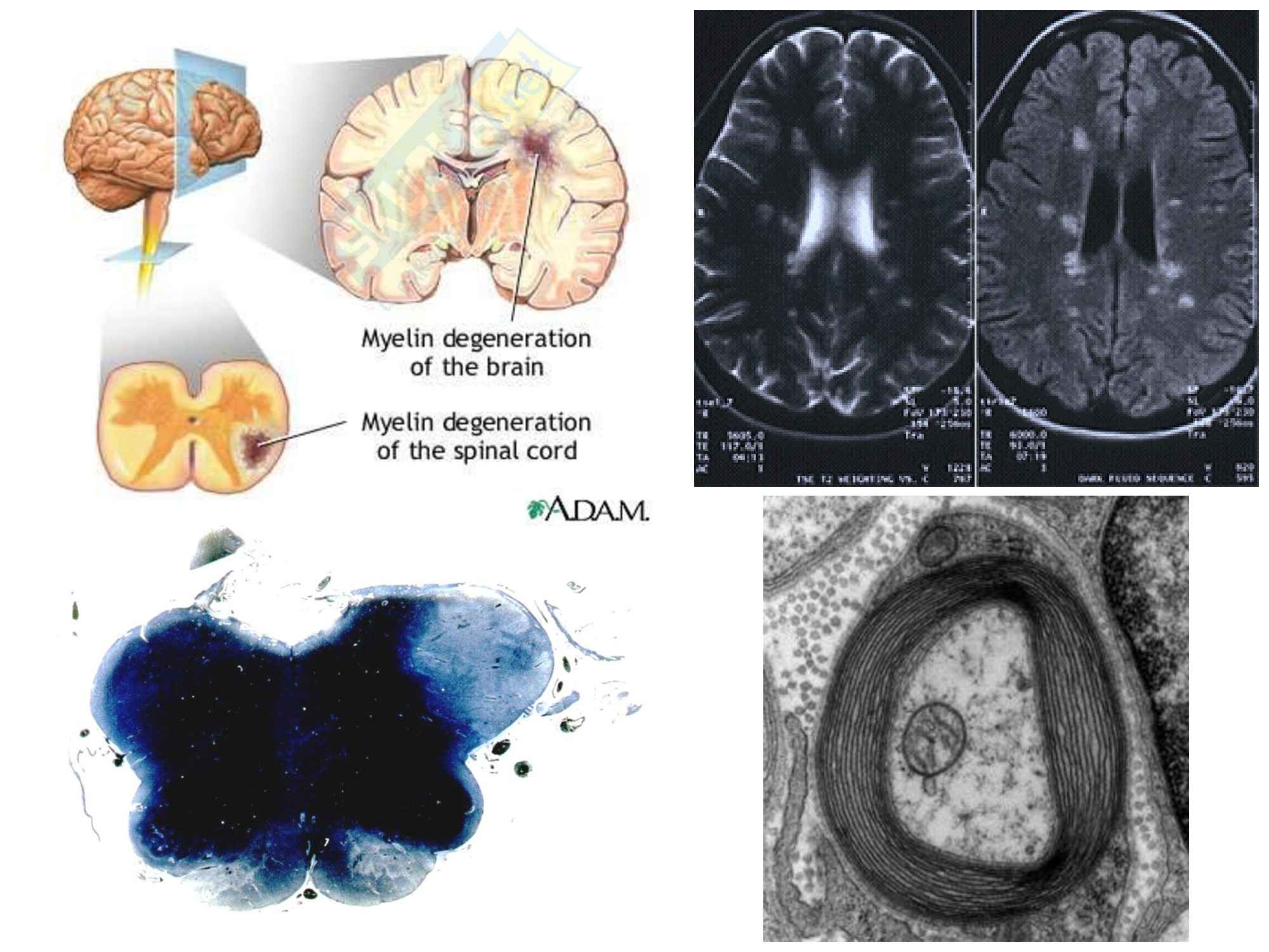 Patologia generale - la sclerosi multipla Pag. 11