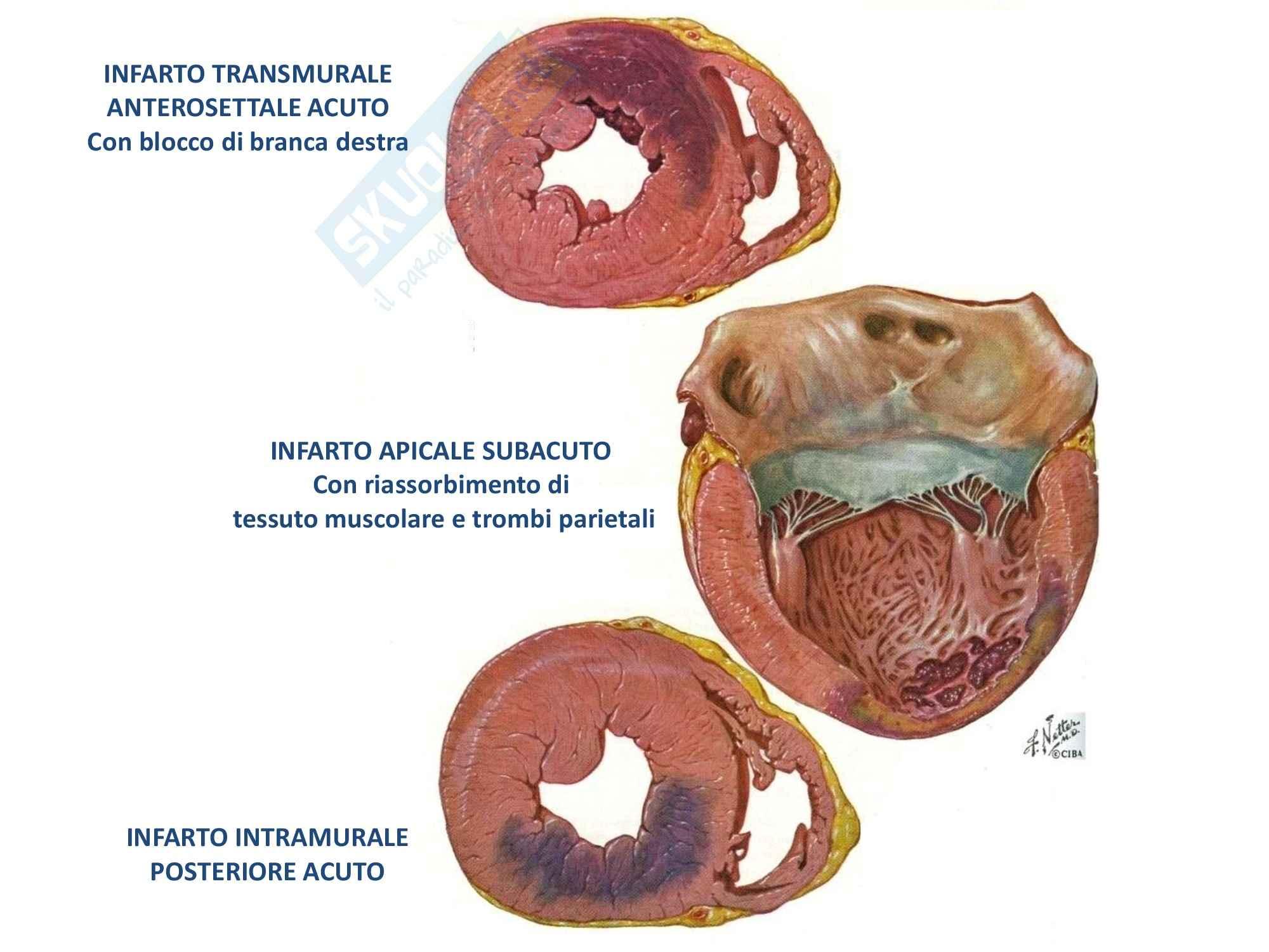 Patologia generale - l'infarto del miocardio Pag. 16