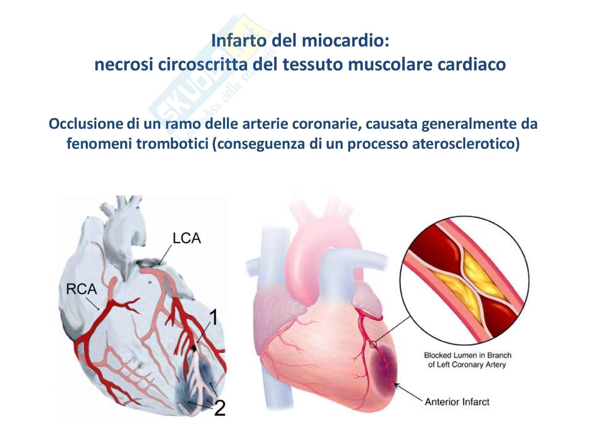 Patologia generale - l'infarto del miocardio Pag. 2