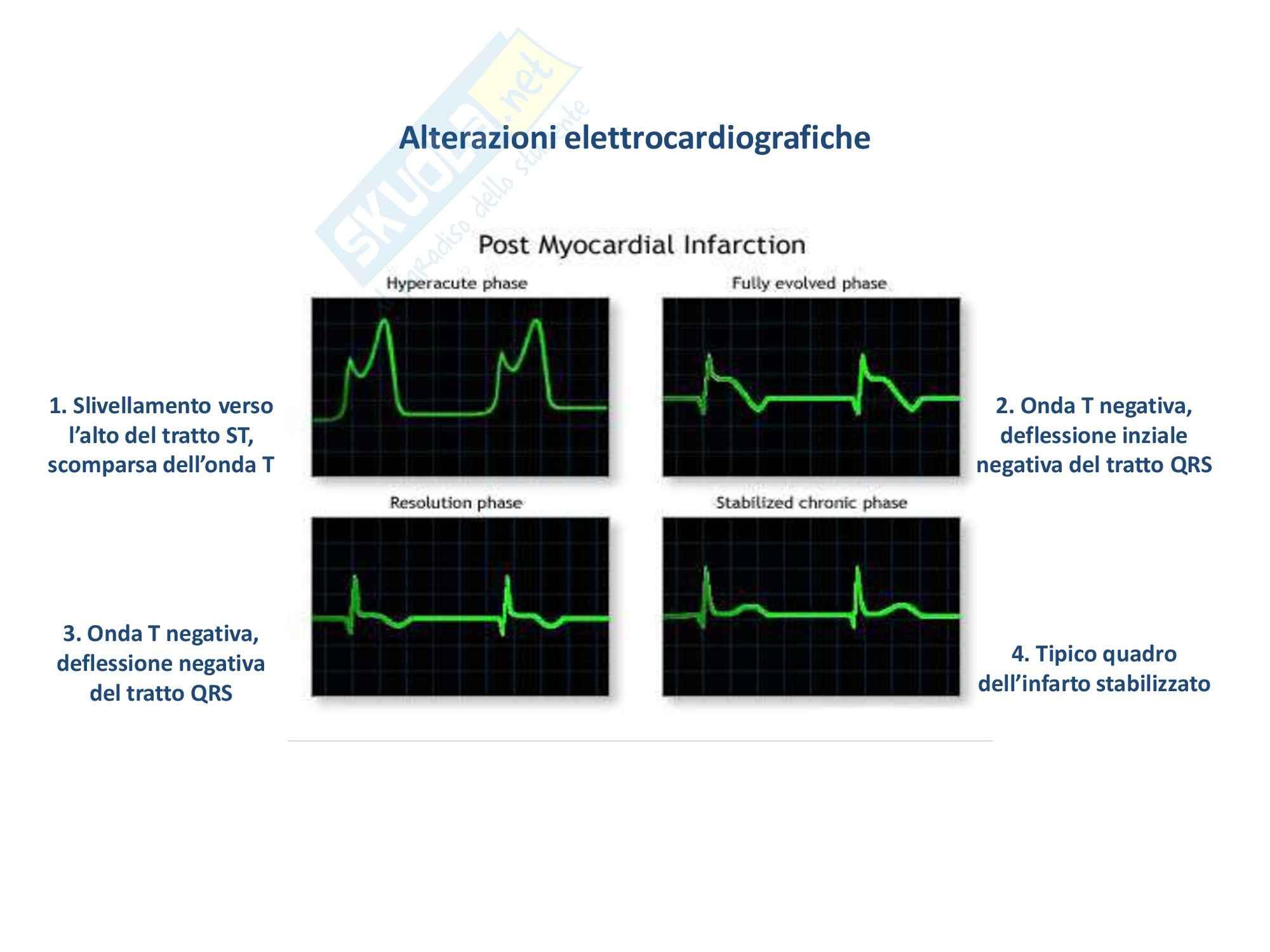 Patologia generale - l'infarto del miocardio Pag. 21